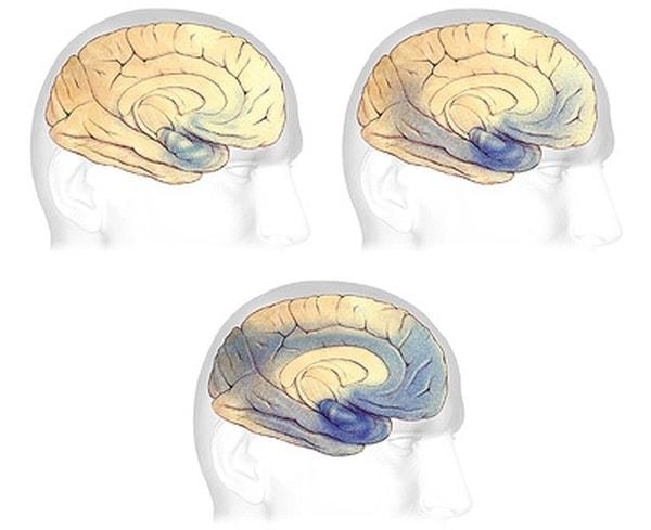 Zobrazení uzlíků a plaku v oblastech mozku spojených s pamětí.